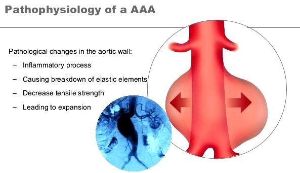 aaa abdominal-aortic-aneurysm-8-638