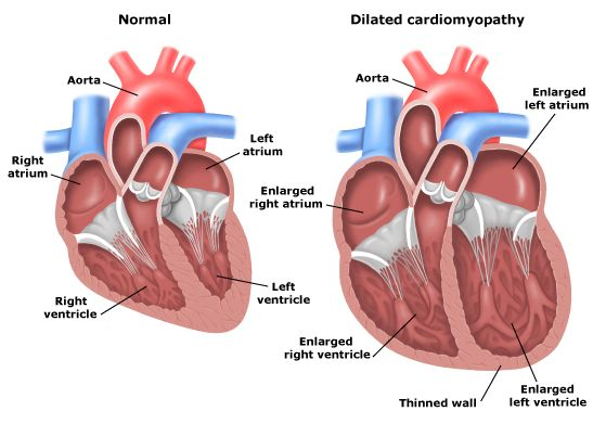 dilated_cardiopathy_anatomy