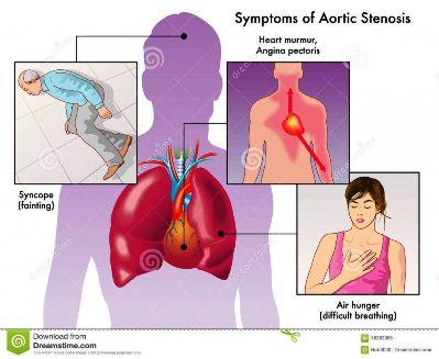 AORT st-symptoms-aortic-stenosis-medical-illustration-58383085-1024x839