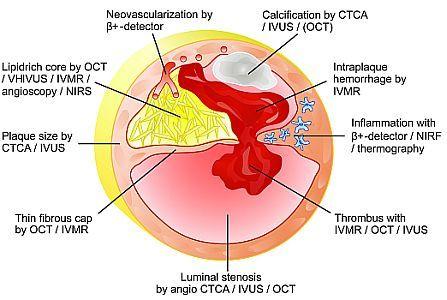 nstemi ΝΣΤΕΜΙ-acute_coronary_syndrome1