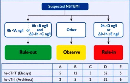 nstemi -2-CPsoZvfWIAABaTl