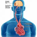 BRI atrial_fibrillation