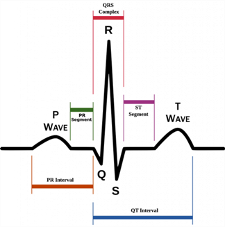 hkg ecg-Schematic-decg-iagram-of-normal-sinus-rhythm-for-a-human-heart-as-seen-on-ECG-Wikipedia-free-to-use-1016x1024