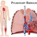 tve_pulmonary_embolism