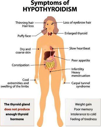 Hypothyroidism-SYMP