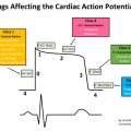 arrytm Cardiac_action_potential