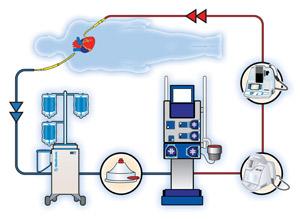 off pump cad-heart-lung
