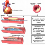tripl Fig-2-Angioplasty-with-stent-implantation-procedure-Schematic-illustration-Figure