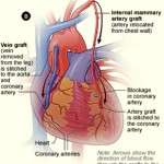 CABG Illustration