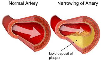 Cholesterol-plaque