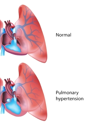 ph Pulmonary-Hypertension-Lungs