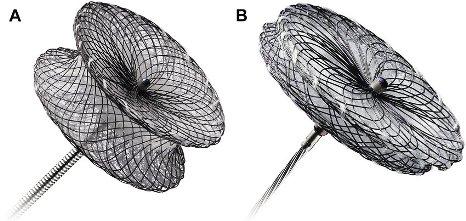 vsd Amplatzer-VSD-occluders-A-Amplatzer-muscular-VSD-occluder-B-Amplatzer-membranous
