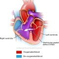 Mount Sinai Health System, Congenital Heart Defects