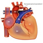 coa #### coarctation-of-the-aorta-illustration-canonical-16x9