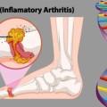 Gout -Diet-News-722x406