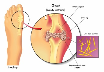 Gout+Treatment