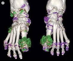 gout 4 images