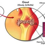 gout ############## Discover-How-You-Can-Control-Uric-Acid-Levels
