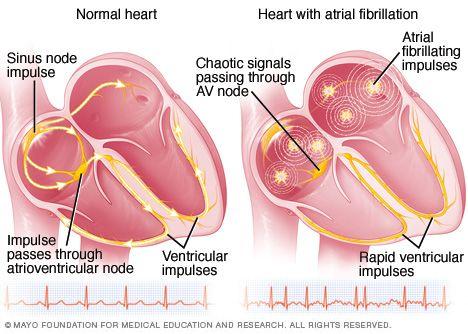 ATRIAL-FIBRILLATION-mcdc11_heartforafib