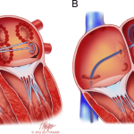 abl Schematic-drawing-showing-catheter-ablation-of-atrial-fibrillation-using-either-RF-energy