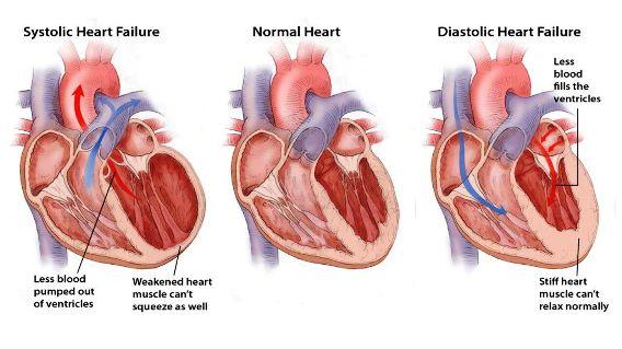 icd SystolicDiastolic_Heartfailure.5518685646fab-1024x576