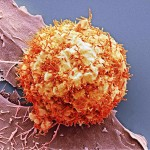 can 6-liver-cancer-cell-sem-science-photo-library