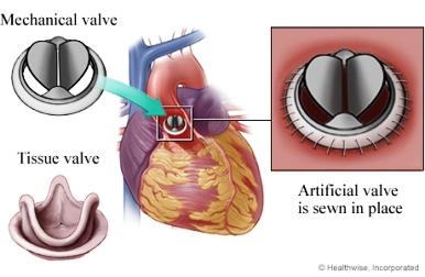 mr Mechanical-vs-Tissue-Valve