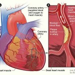 chol HeartAttack2