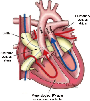 tga The-Atrial-Switch-Procedure-Senning-or-Mustard-An-intra-atrial-baffle-is-created-to