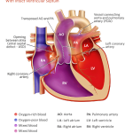 tga transposition-of-the-great-arteries-with-intact-ventricular-septum-illustration-773px_0