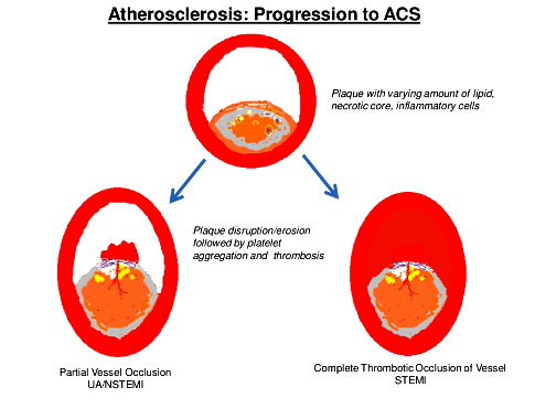 NSTEMI Fig-2-Atherosclerosis-progression-to-ACS