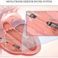 leadless-pacemaker-and-subcutaneous-icd-54-638