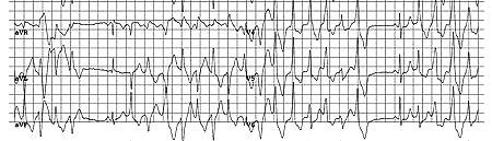cp 450px-ECG000033_(CardioNetworks_ECGpedia)