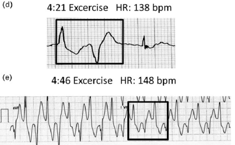 cp Catecholaminergic-polymorphic-ventricular-tachycardia-CPVT-Typical-progression-of