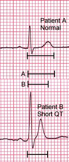 sqt Short QT vs Long QT