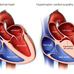 hcm a-medical-illustration-of-a-normal-heart-and-one-with-hypertrophic-cardiomyopathy-original-1024x695