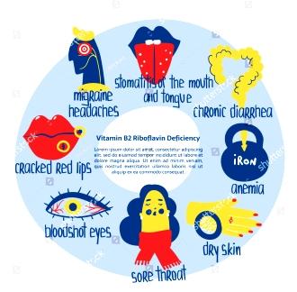 B2 stock-vector-hand-drawn-vitamin-b-riboflavin-deficiency-stomatitis-anemia-migraine-boodshot-eyes-diarhhea-1468575284