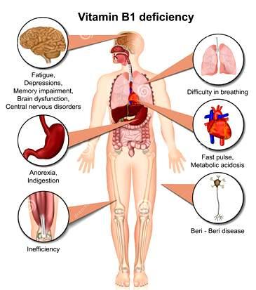 vit vitamin-b-deficiency-d-medical-vector-illustration-infographic-white-background-thiamine-eps-143851376