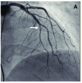 scad Angiographic-classification-of-spontaneous-coronary-artery-dissection-Type-1-spontaneous