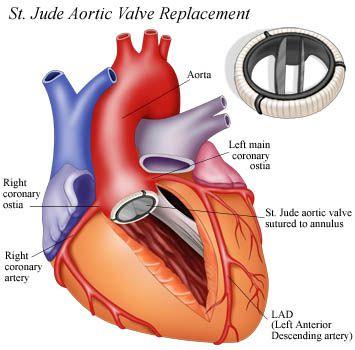 coag aort-2756m3_small