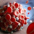 coag thrombus-2