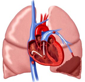 coag vte-54680-Pulmonary-Embolism-original-982x1024