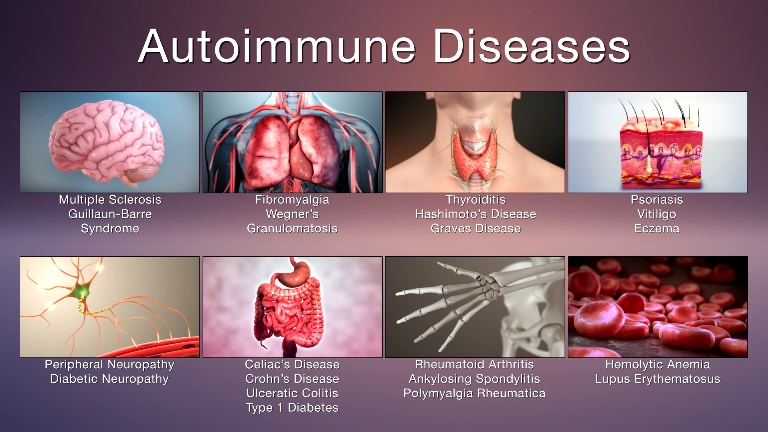 Auto immune-Diseases