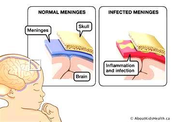 Men ingitis_MED_ILL_EN