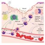 anosia Inflammatory-Response