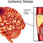 homo 13699566-brain-stroke-a-illustration-of-ischemic-stroke-