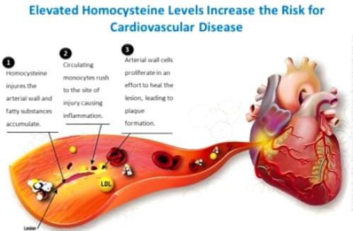 homo cysteine-12-638