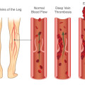 thromb What-Is-Deep-Vein-Thrombosis