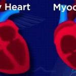 myoc B4DA5EF5F0044DE89748F10137FE63BA