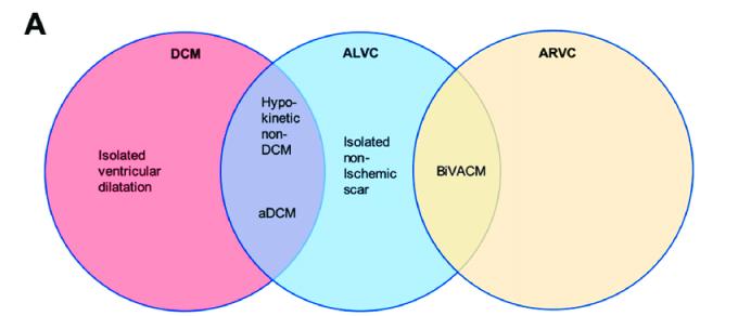 ar 1 Spectrum-of-clinical-presentations-of-right-ventricular-disease-left-ventricular